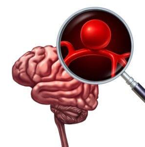 脳動脈瘤-N1