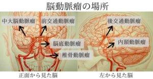 脳動脈瘤の場所-N1