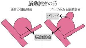脳動脈瘤の形-N1